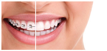 Dental Braces East Berlin PA