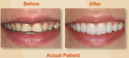Dental Veneers Dentist East Berlin PA